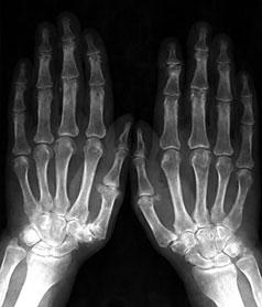 Изображение - Рентген деформирующего артроза тазобедренного сустава p2943