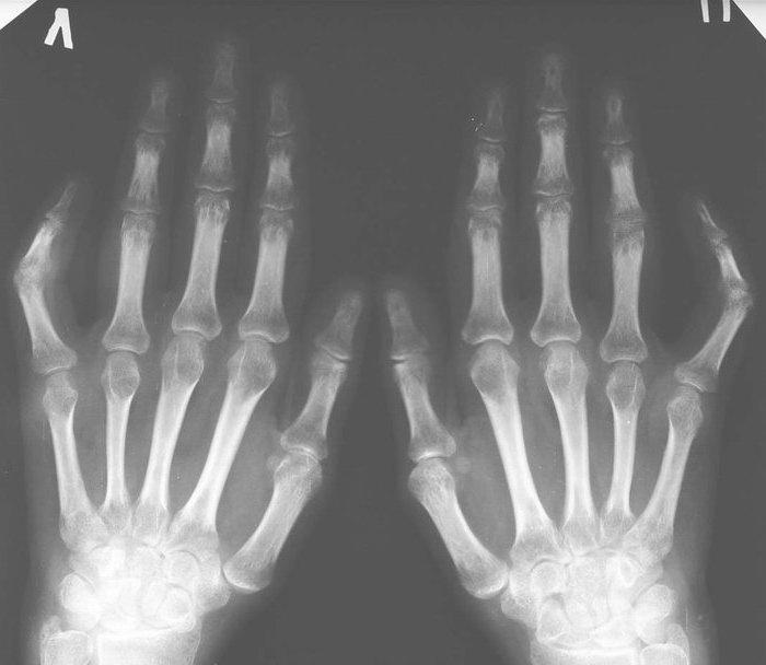 Остеопороз плюс не фалангового сустава схемы как рвутся коленннве сустав