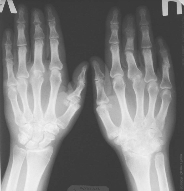 Остеопороз суставных поверхностей пальца руки артрит коленного сустава в пожилом возрасте