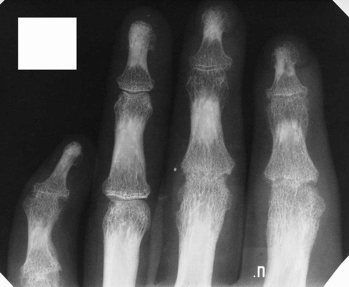 жизнь после эндопротезирования тазобедренного сустава разница в длине ног