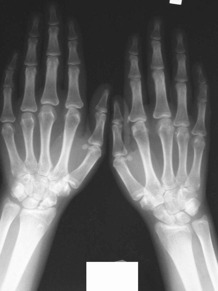 Остеопороз суставных поверхностей пальца руки хруст суставов у грудничков